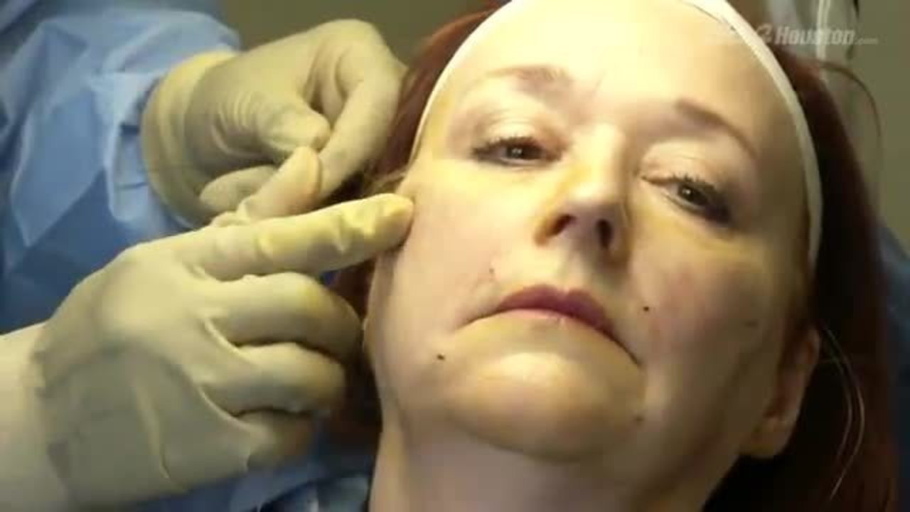 Controversial cosmetic procedure once banned by FDA returns