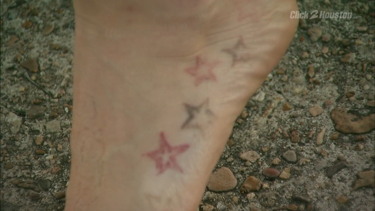 Abrupt closure of tattoo removal clinic leaves customers for Tattoo removal clinic