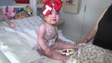 Baby Tenley gets heart transplant