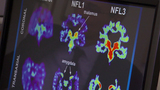 Study looks at deceased NFL players' brains