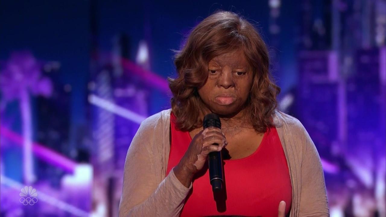 Americas got talent 2017 plane crash - Local Singer Burn Survivor Inspiring Children At Shriners