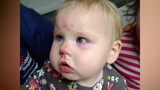 Infant reportedly found with bloodied face raises questions about&hellip&#x3b;