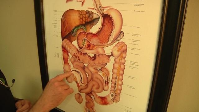 Shutting off inflamatory bowel disease symptoms