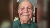 Elderly man says he was sucker-punched during robbery on way to Bible study