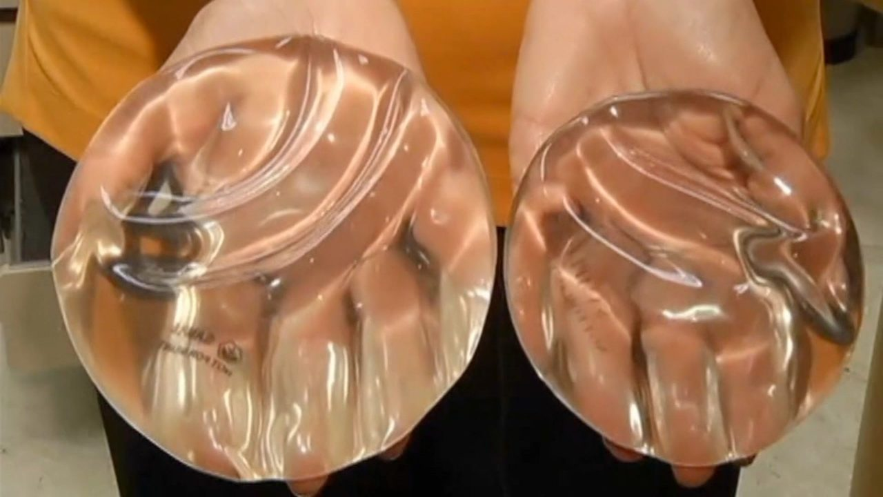 0da68bfbac Doctors issue new warnings about silicone breast implants