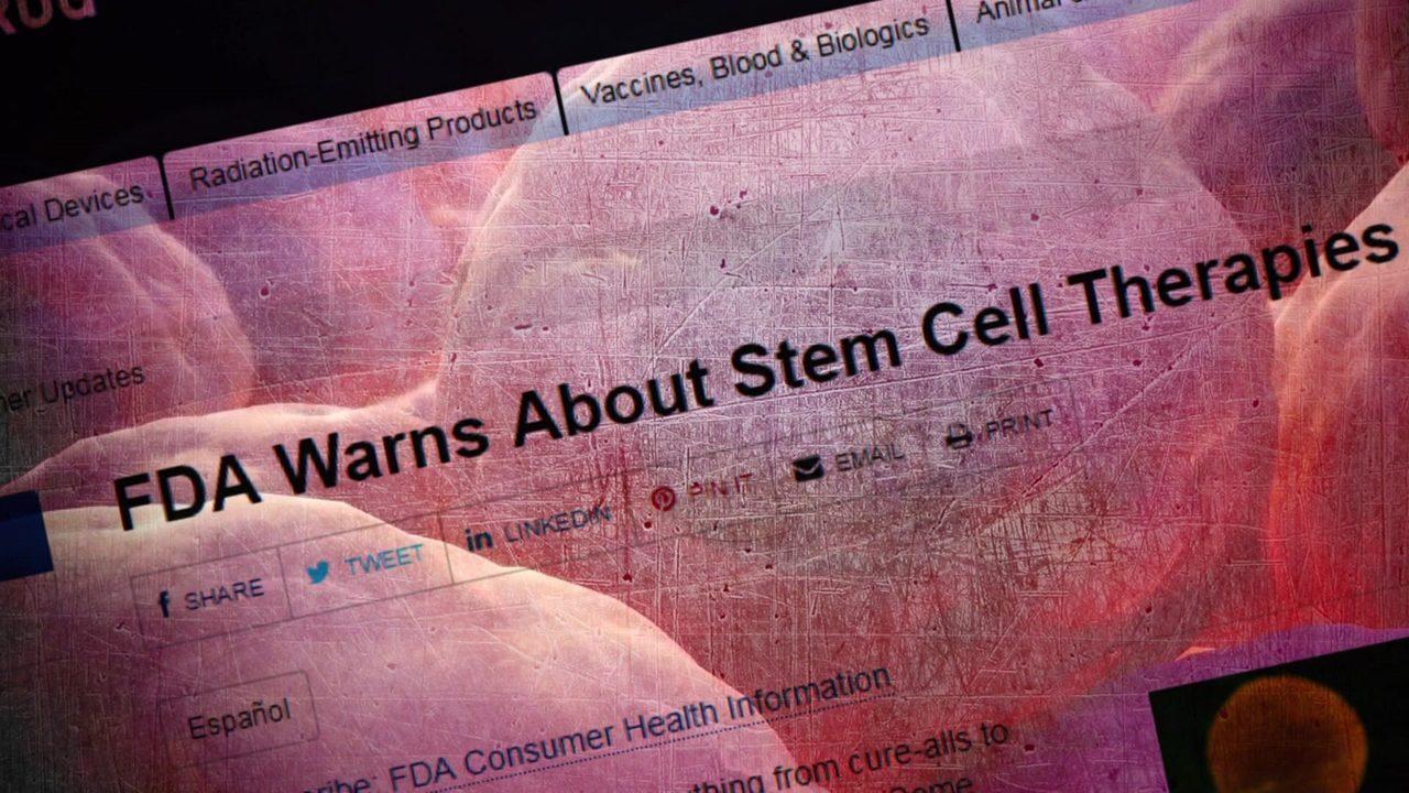 FDA: Stem cell treatment not approved for arthritis, chronic