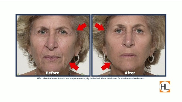 Eliminate wrinkles, crows-feet & under-eye bags with Plexaderm | HOUSTON…
