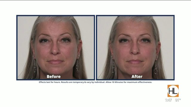 Eliminate wrinkles and crows-feet with Plexaderm | HOUSTON LIFE | KPRC 2