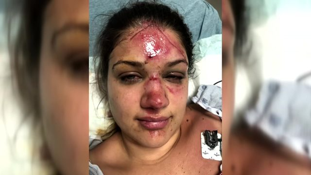 Woman says she was attacked by women who were stealing her tubes at…