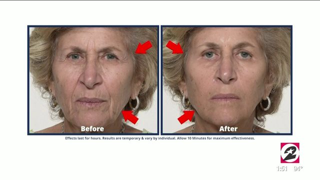 Get rid of fine lines, wrinkles and under-eye bags with Plexaderm  …