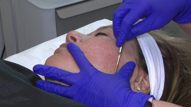 Dermaplaning 101: What you need to know