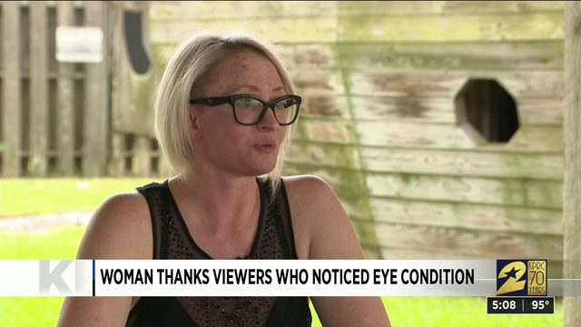 Woman thanks viewers who noticed eye condition