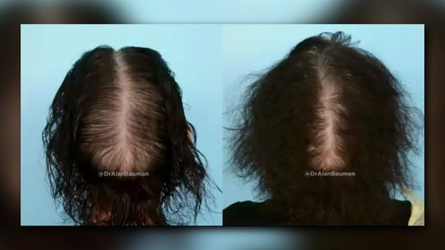 The new approach to treating hereditary hair loss