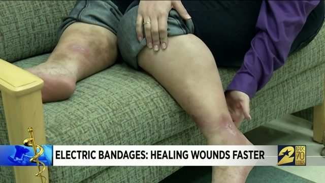 Electric Bandages: Healing Wounds Faster