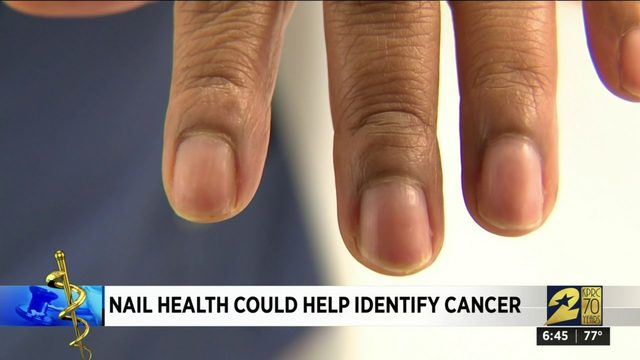 Nail health could help identify cancer
