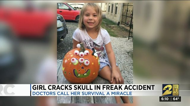 Girl cracks skull in freak accident