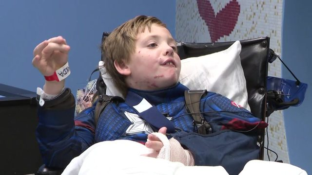 8-year-old boy undergoes 7 surgeries after being mauled by dog