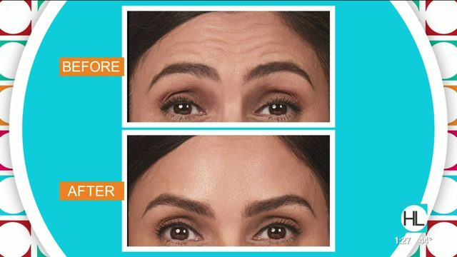 Everything you need to know about Botox | HOUSTON LIFE | KPRC 2